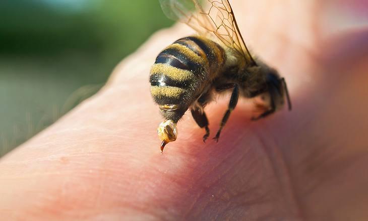 Bienenstich: Was tun? Behandlung in 5 Schritten